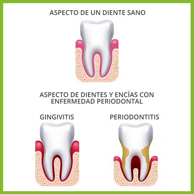Aspecto normal de dientes sanos