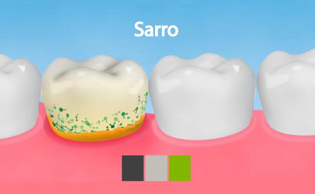 Sarro en los dientes, como prevenirlo y tratarlo