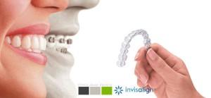Ortodoncia invisible con invisalgn