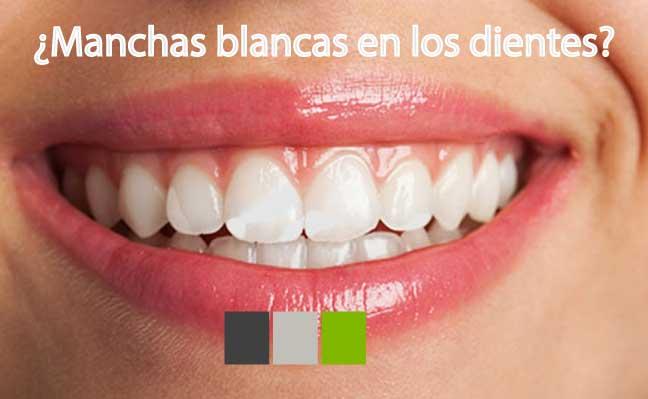 Qué son las manchas blancas en los dientes y como tratarlas.
