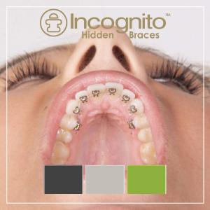 La modalidad de incógnito es la llamada ortodoncia lingual. Son unos braquets que se colocan por la parte interior de los dientes, de manera que no se ven cuando sonríes.