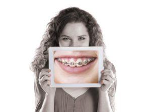 Paciente de ortodoncia satisfecho por el tratamiento ofrecido