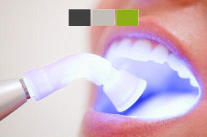 Participa en el sorteo de un blanqueamiento dental